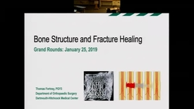 Thumbnail for entry Bone Structuring and Fracture Healing