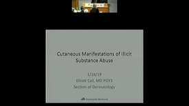 Thumbnail for entry Cutaneous Manifestations of Illicit Substance Use