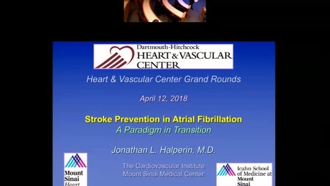 Stroke Prevention in Atrial Fibrillation: A Paradigm in Transition