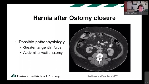 Thumbnail for entry It's Not Just a Hernia - Results of the Stoma Closure and Reinforcement (SCAR) Trial