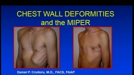 Thumbnail for entry Chest Wall Deformities and the MIPER
