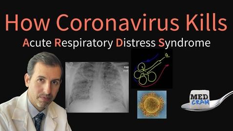 Thumbnail for entry How Coronavirus Kills: Acute Respiratory Distress Syndrome (ARDS) & COVID-19 Treatment