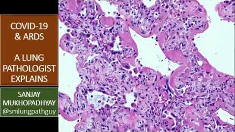 Thumbnail for entry A Pulmonary Pathologist's Perspective on COVID-19