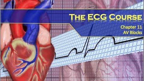 Thumbnail for entry The ECG Course - AV Blocks (The Resuscitationist)