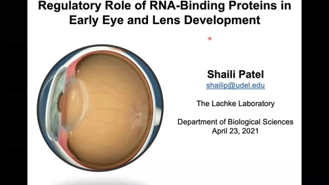 Thumbnail for entry Regulatory role of RNA-binding proteins in eye and lens development, Shaili Patel