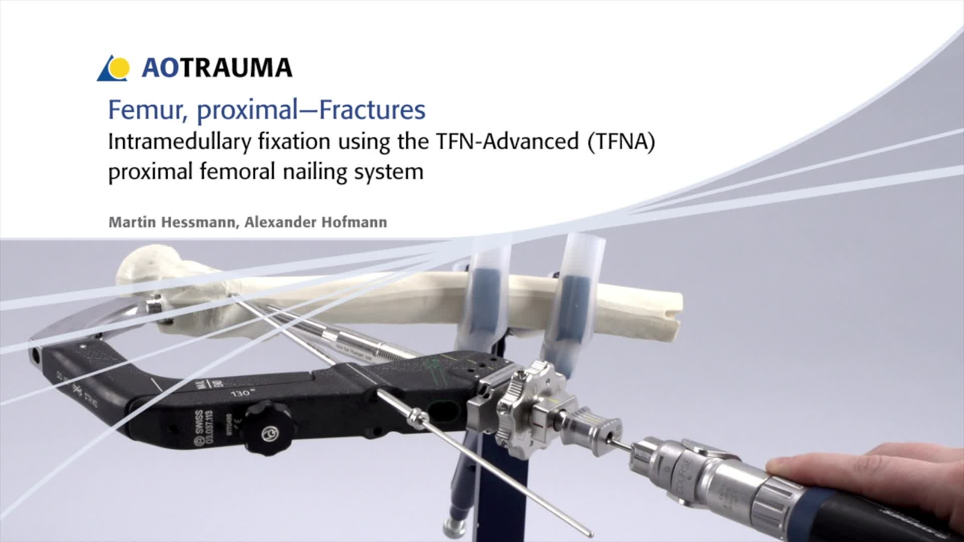 ... for the intramedullary fixation of a proximal femoral fracture will be demonstrated using the TFN-Advanced Proximal Femoral Nailing System (or TFNA).