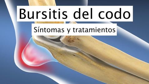 Miniatura para la entrada Bursitis del codo