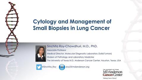 Thumbnail for entry Houston Methodist Cancer Symposium - 8th Annual 8.7.20 (Sinchita Roy-Chowdhuri, MD, PhD.)