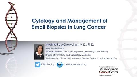 Thumbnail for entry Houston Methodist Cancer Symposium - 8th Annual 08.07.20 (Sinchita Roy-Chowdhuri, MD, PhD.)