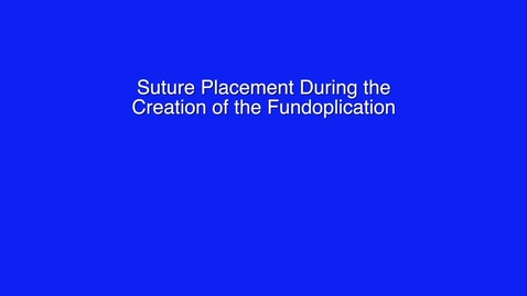 Thumbnail for entry 08- Fundoplication App: Suture Placement During the Creation of the Fundoplication by Patrick R. Reardon, MD