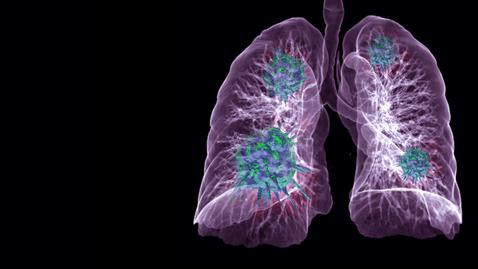 Thumbnail for entry Pulmonary Embolism 5.13.20