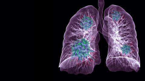 Thumbnail for entry Pulmonary Embolism 05.13.20