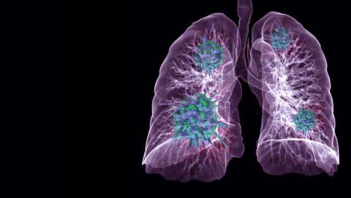 Pulmonary Embolism 5.13.20