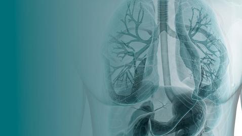 Thumbnail for entry COVID-19 and Transplantation- 05.08.21