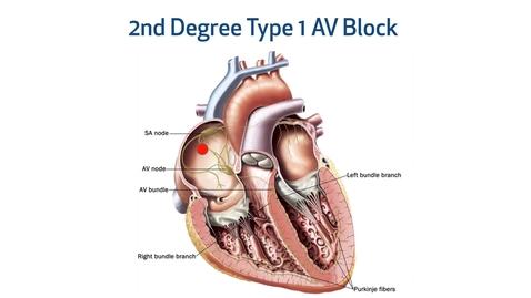 Thumbnail for entry ECG Interpretation: Distinguishing AV Blocks