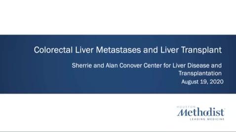 Thumbnail for entry Colorectal Liver Metastases and Liver Transplant - 8.19.20
