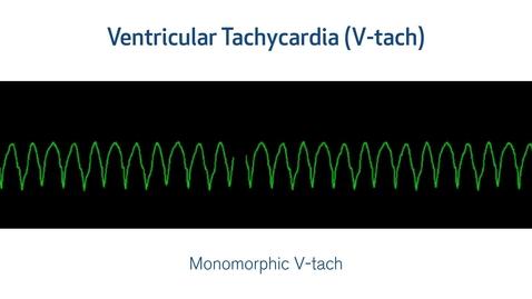 Thumbnail for entry ECG Interpretation: Lethal Arrhythmias