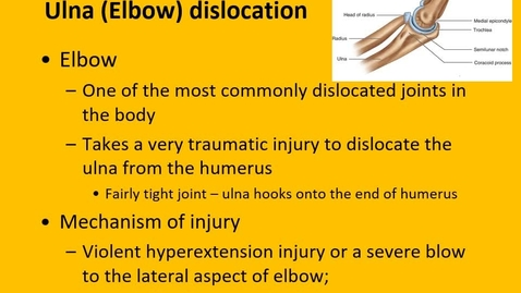 Thumbnail for entry Chapter 11 Elbow Injuries - ulna dislocation