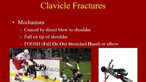 Thumbnail for entry Chapt 10- Shoulder Injuries - clavicle Fx