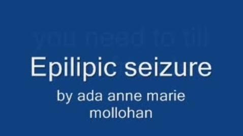 Thumbnail for entry Epilepsy