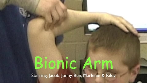 Thumbnail for entry Bionic Arm