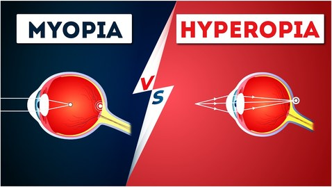 Thumbnail for entry Difference Between Myopia and Hyperopia | Near and Farsightedness | Physics | Letstute