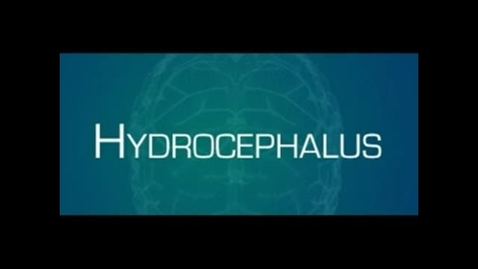 Thumbnail for entry Hydrocephalus Awareness