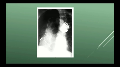 Thumbnail for entry Perioperative Medicine - 19 Feb 20 12:07 PM