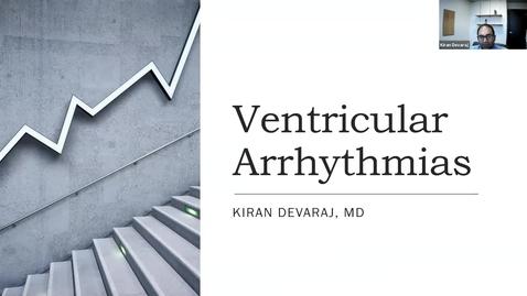 Thumbnail for entry 9/15 Ventricular Arrhythmias with Dr. Devaraj