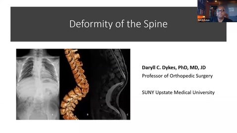 Thumbnail for entry Scoliosis and Spine Deformities