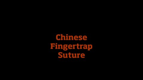 Thumbnail for entry Chinese Fingertrap