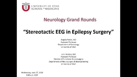 Thumbnail for entry Stereotactic EEG in Epilepsy Surgery