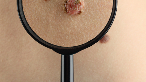 Thumbnail for entry Mapping Moles Is an Effective Way to Fight Skin Cancer
