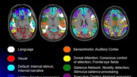 Thumbnail for entry Map of Brain Network Anatomy