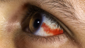 Thumbnail for entry Health Minute: Broken Blood Vessel in the Eye