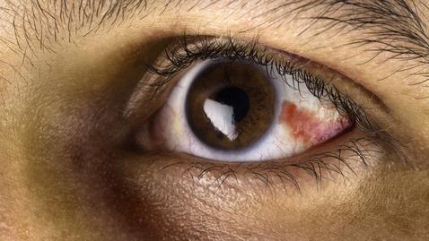Thumbnail for entry Broken Blood Vessel in the Eye