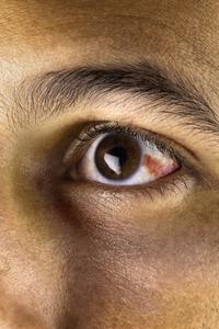 ER or Not: Broken Blood Vessel in Eye | University of Utah Health