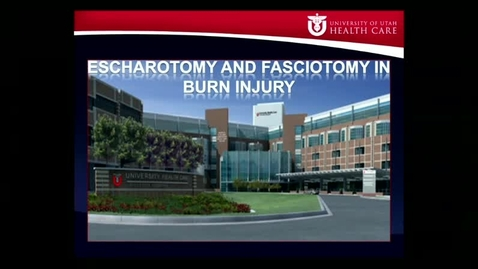 Thumbnail for entry 12/15/16 The role of escharotomy and fasciotomy in the burned patient