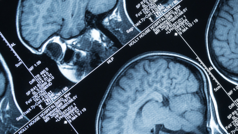 Thumbnail for entry Surgical Option to Treat Drug-Resistant Epilepsy