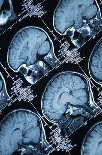 Surgical Option to Treat Drug-Resistant Epilepsy