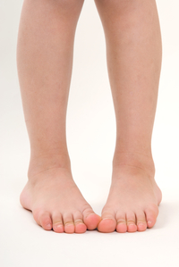 Does Your Child Have Pigeon Feet? When It's Normal - And ...