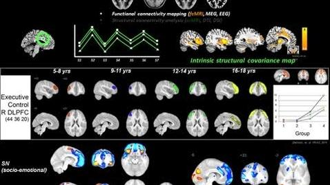 Thumbnail for entry Neurology-TNSH