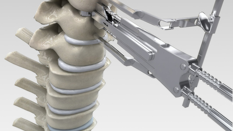 What to Expect When Treating Spinal Stenosis with Surgery