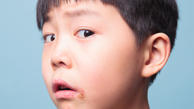 Thumbnail for entry How to Treat Your Child's Cold Sore