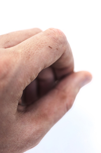 Best Way to Remove a Splinter | University of Utah Health
