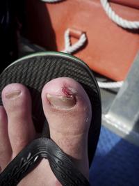 ER or Not: Really Bad Stubbed Toe | University of Utah Health