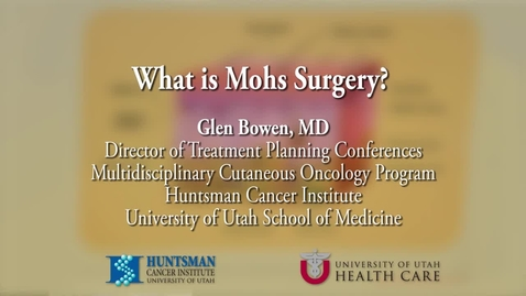 Thumbnail for entry What is Mohs Surgery?
