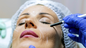 Thumbnail for entry What is the Difference Between a Normal Facelift and a Mini Facelift?