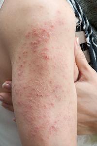 I'm Not Sure Why I Keep Getting Hives | University of Utah Health