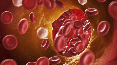 New Guidance Statements on Management of Venous Thromboembolism